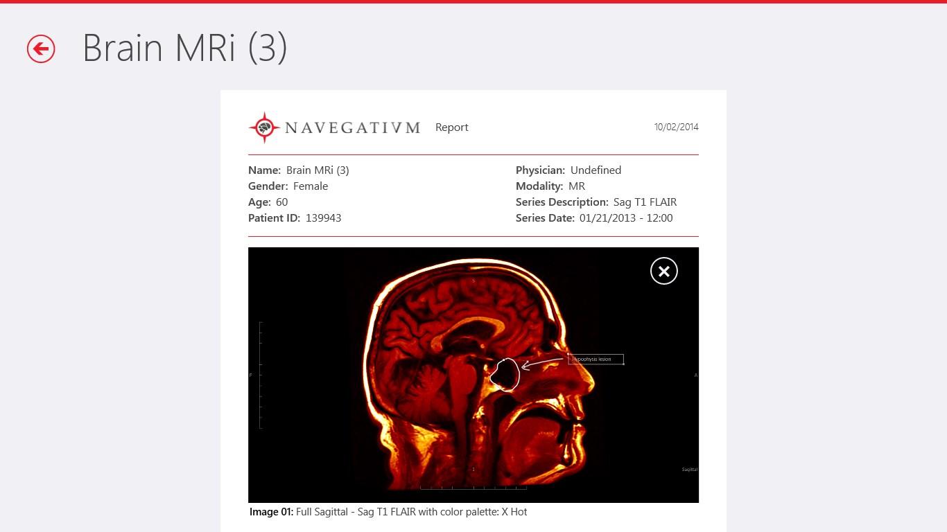 Navegatium DICOM Viewer